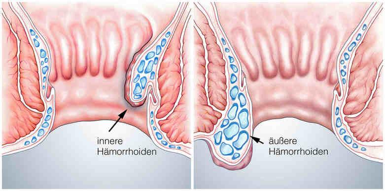 Innere und äußere Haemorrhoiden
