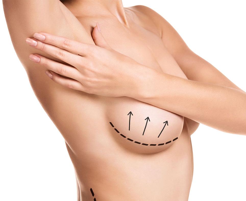Brustvergroesserung, Bruststraffung, Brust- Op Koeln