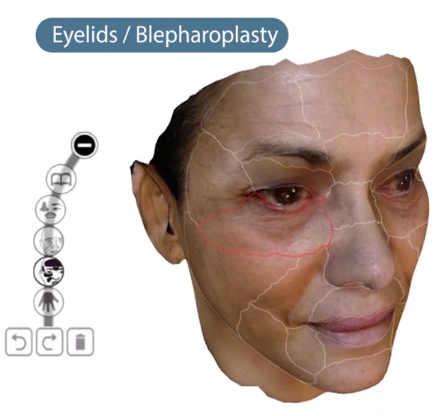 Lidstraffung 3D Simulation