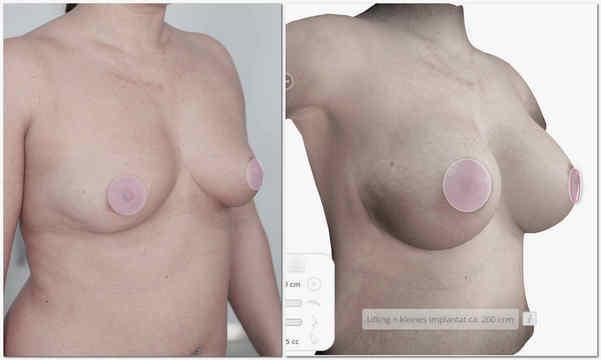 Vorher-nachher Brustvergrößerung und  Bruststraffung in Köln Dr. Haffner 3d Methode